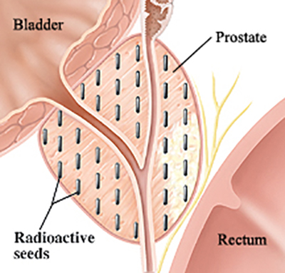 Radioactive seeds implanted throughout the prostate gland.